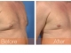 male-breast-reduction-obl2