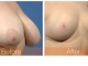 05-breast-reduction-obl