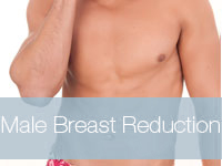 Male-BReast