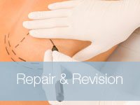 Repair-and-Revision