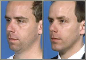 Limited Incision (Mini) Neck Lift and Chin Augmentation