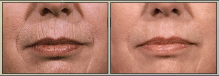 rjc_dermabrasion_mouth2