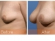 breast-augmentation-rjc-031
