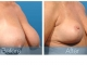 03-breast-reduction-obl