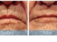rjc_dermabrasion_mouth3