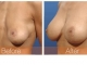 breast-repair3obl