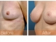 breast-augmentation-rjc-016