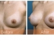 breast-augmentation-rjc-005