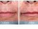 rjc_dermabrasion_mouth1