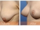 breast-repair1obl